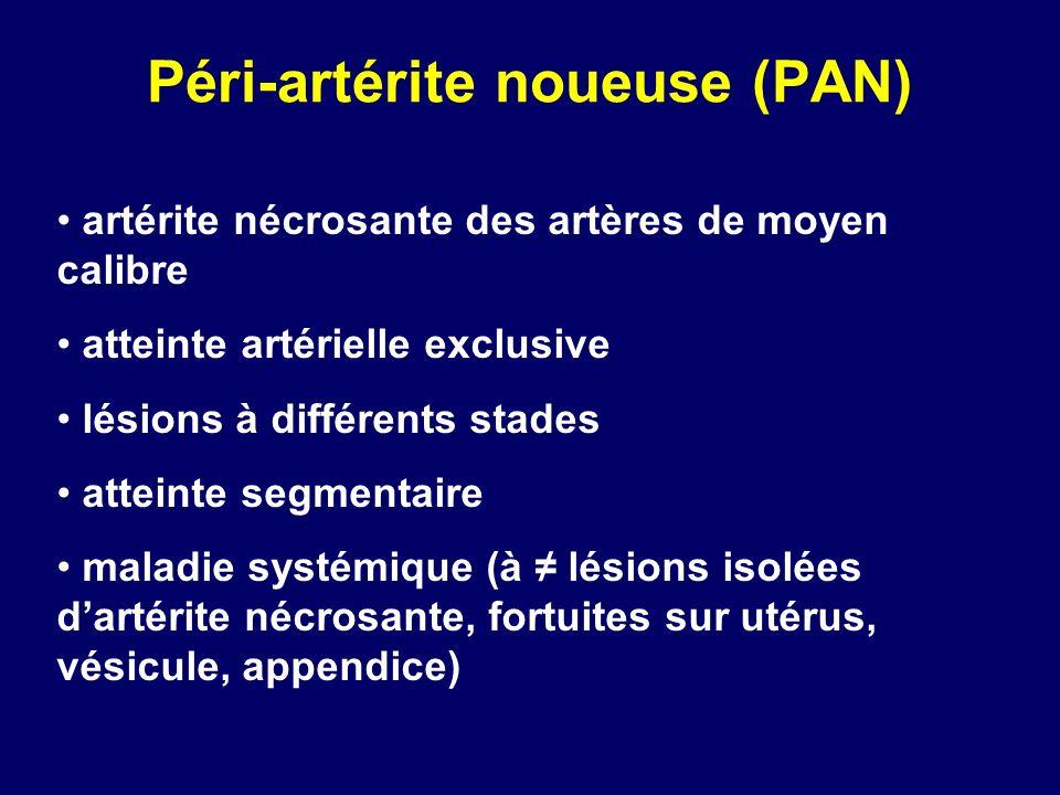 Péri-artérite noueuse (PAN) artérite nécrosante des artères de moyen calibre atteinte artérielle exclusive lésions à différents stades atteinte segmen