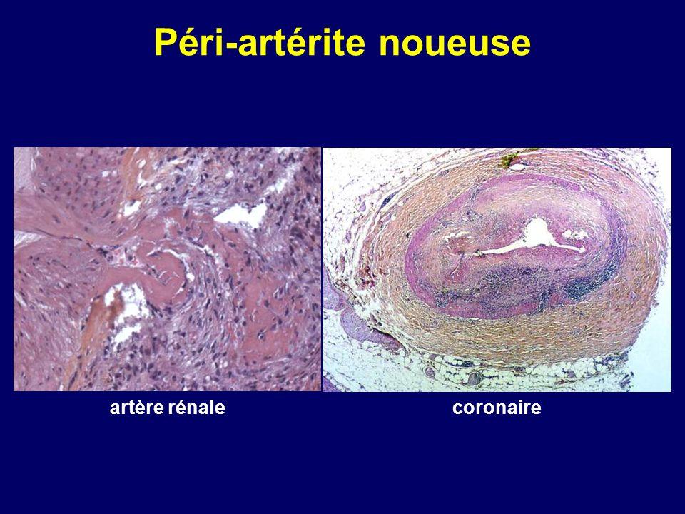 Péri-artérite noueuse coronaireartère rénale