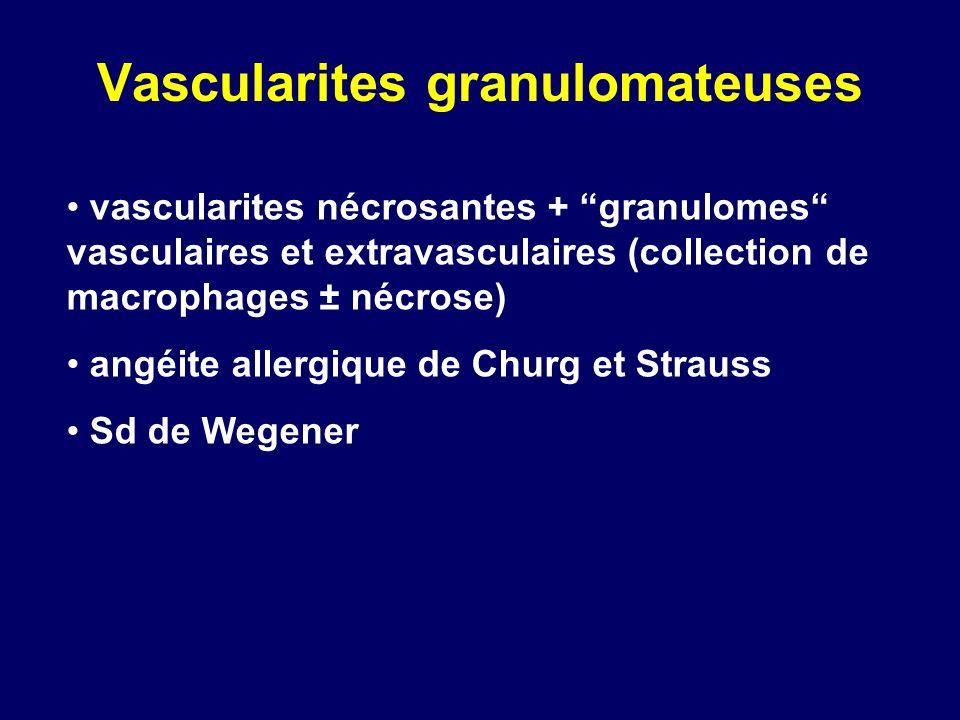 Vascularites granulomateuses vascularites nécrosantes + granulomes vasculaires et extravasculaires (collection de macrophages ± nécrose) angéite aller