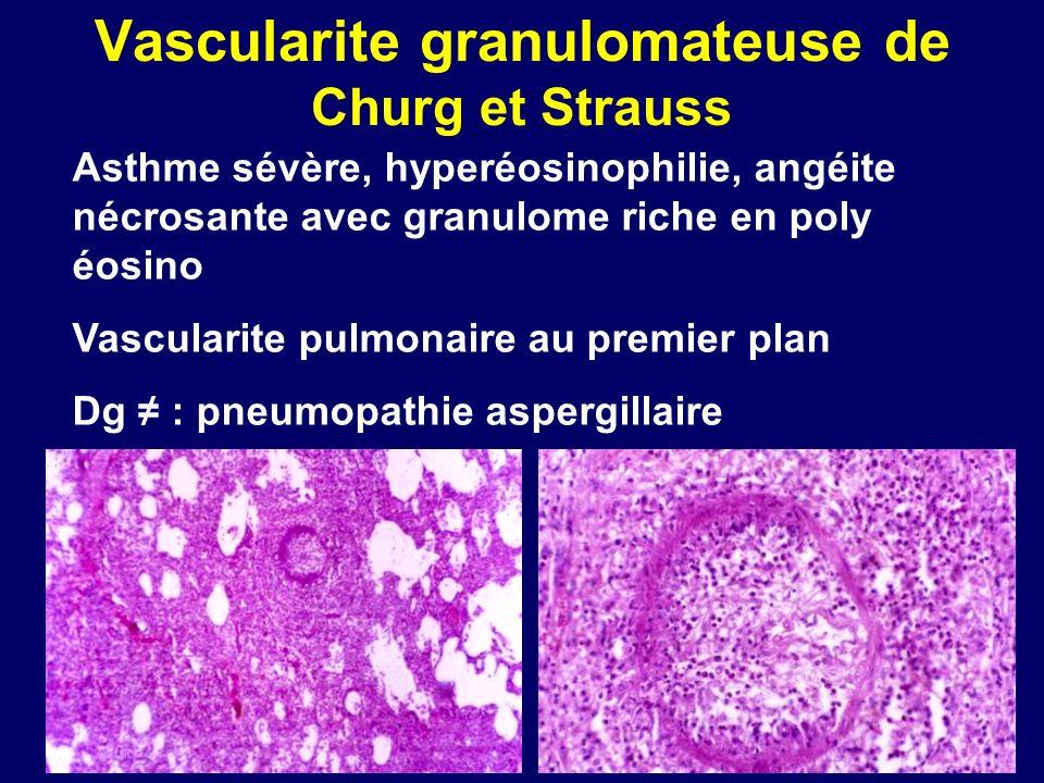 Vascularite granulomateuse de Churg et Strauss Asthme sévère, hyperéosinophilie, angéite nécrosante avec granulome riche en poly éosino Vascularite pu