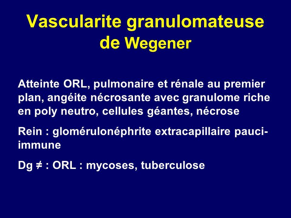 Vascularite granulomateuse de Wegener Atteinte ORL, pulmonaire et rénale au premier plan, angéite nécrosante avec granulome riche en poly neutro, cell