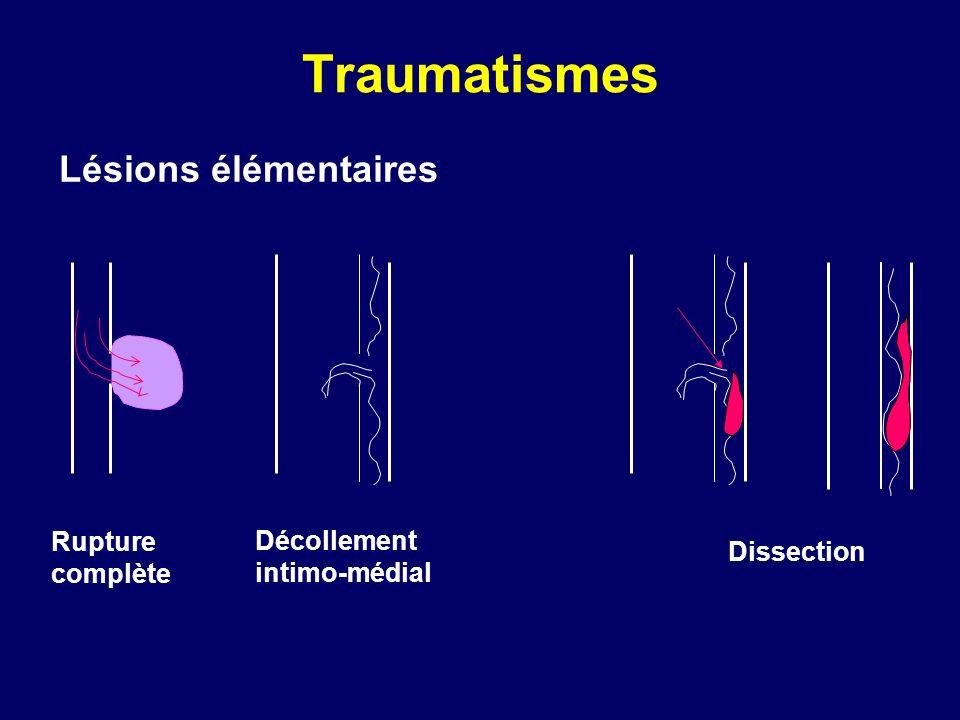 Traumatismes Lésions élémentaires Rupture complète Décollement intimo-médial Dissection