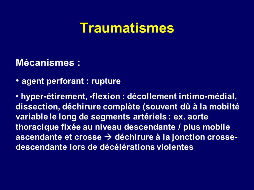 Traumatismes Mécanismes : agent perforant : rupture hyper-étirement, -flexion : décollement intimo-médial, dissection, déchirure complète (souvent dû