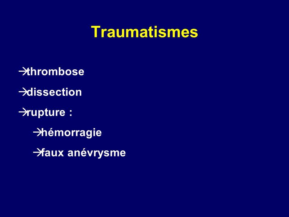 Traumatismes thrombose dissection rupture : hémorragie faux anévrysme