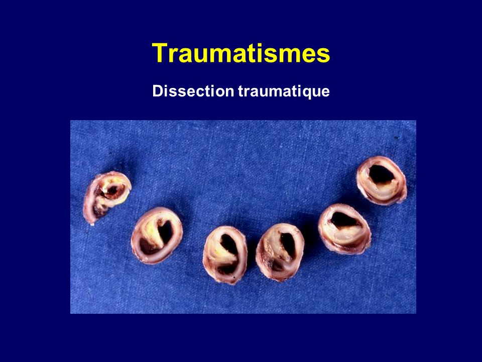 Traumatismes Dissection traumatique