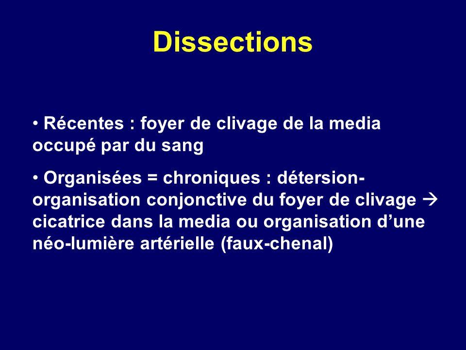 Dissections Récentes : foyer de clivage de la media occupé par du sang Organisées = chroniques : détersion- organisation conjonctive du foyer de cliva