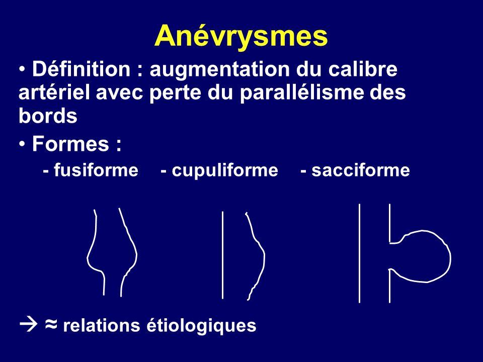 Anévrysmes Définition : augmentation du calibre artériel avec perte du parallélisme des bords Formes : - fusiforme - cupuliforme - sacciforme relation