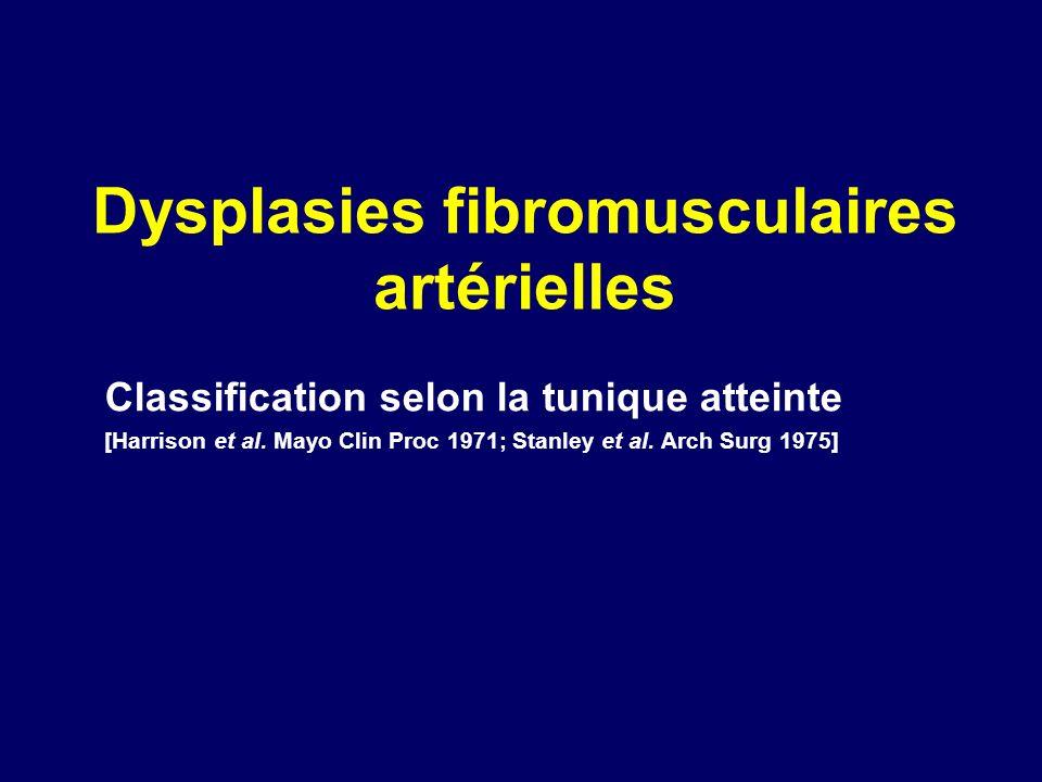 Dysplasies fibromusculaires artérielles Classification selon la tunique atteinte [Harrison et al. Mayo Clin Proc 1971; Stanley et al. Arch Surg 1975]