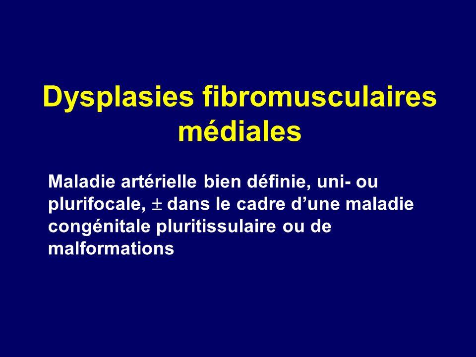 Dysplasies fibromusculaires médiales Maladie artérielle bien définie, uni- ou plurifocale, dans le cadre dune maladie congénitale pluritissulaire ou d