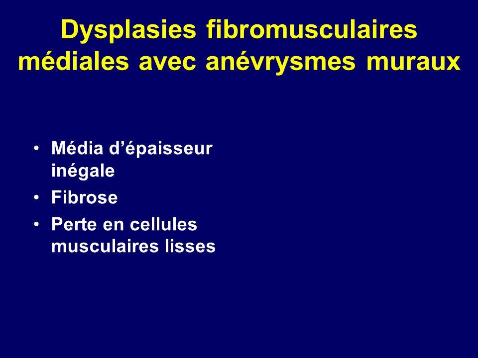 Dysplasies fibromusculaires médiales avec anévrysmes muraux Média dépaisseur inégale Fibrose Perte en cellules musculaires lisses