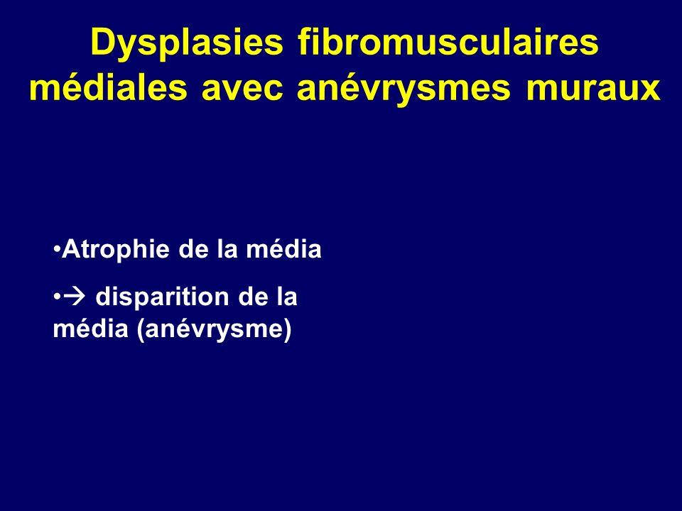 Dysplasies fibromusculaires médiales avec anévrysmes muraux Atrophie de la média disparition de la média (anévrysme)