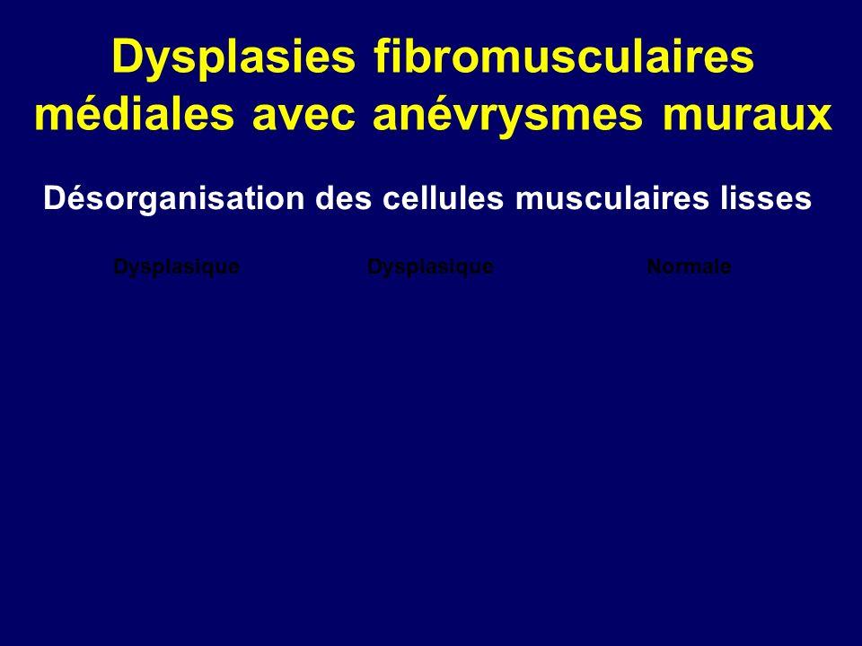 Dysplasies fibromusculaires médiales avec anévrysmes muraux NormaleDysplasique Désorganisation des cellules musculaires lisses Dysplasique
