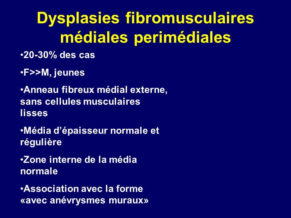 Dysplasies fibromusculaires médiales perimédiales 20-30% des cas F>>M, jeunes Anneau fibreux médial externe, sans cellules musculaires lisses Média dé