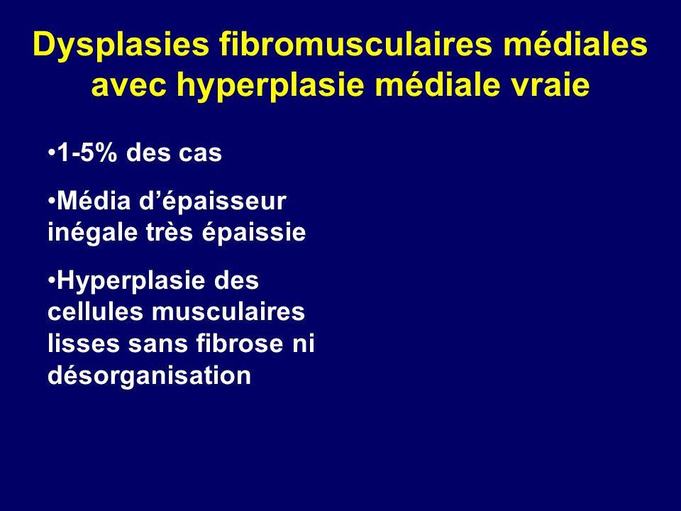 Dysplasies fibromusculaires médiales avec hyperplasie médiale vraie 1-5% des cas Média dépaisseur inégale très épaissie Hyperplasie des cellules muscu