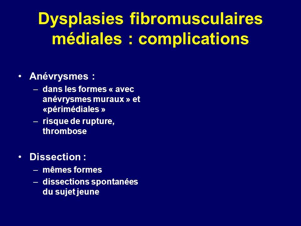 Dysplasies fibromusculaires médiales : complications Anévrysmes : –dans les formes « avec anévrysmes muraux » et «périmédiales » –risque de rupture, t