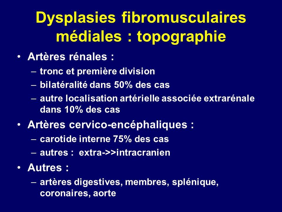 Dysplasies fibromusculaires médiales : topographie Artères rénales : –tronc et première division –bilatéralité dans 50% des cas –autre localisation ar