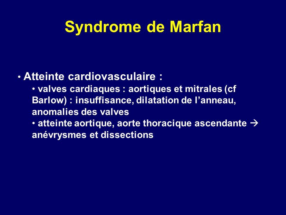 Syndrome de Marfan Atteinte cardiovasculaire : valves cardiaques : aortiques et mitrales (cf Barlow) : insuffisance, dilatation de lanneau, anomalies