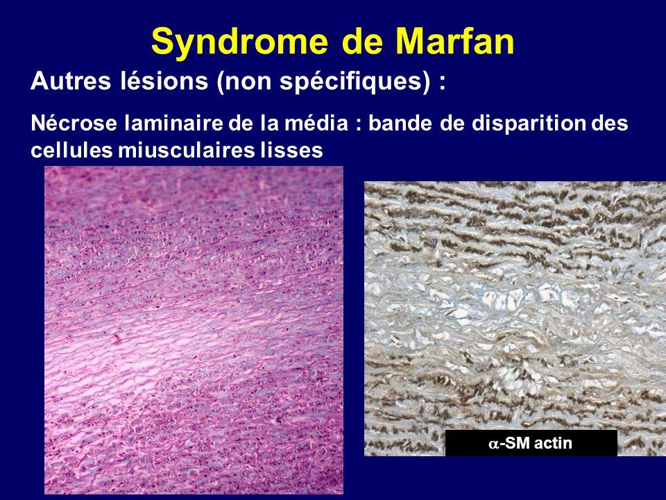 Syndrome de Marfan Autres lésions (non spécifiques) : Nécrose laminaire de la média : bande de disparition des cellules miusculaires lisses -SM actin