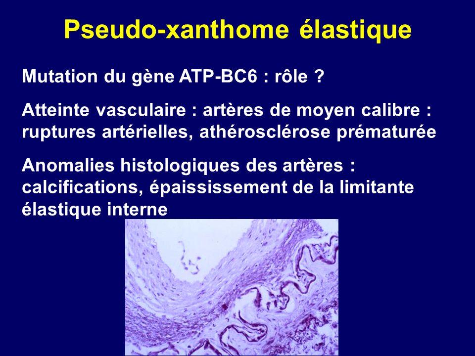 Pseudo-xanthome élastique Mutation du gène ATP-BC6 : rôle ? Atteinte vasculaire : artères de moyen calibre : ruptures artérielles, athérosclérose prém