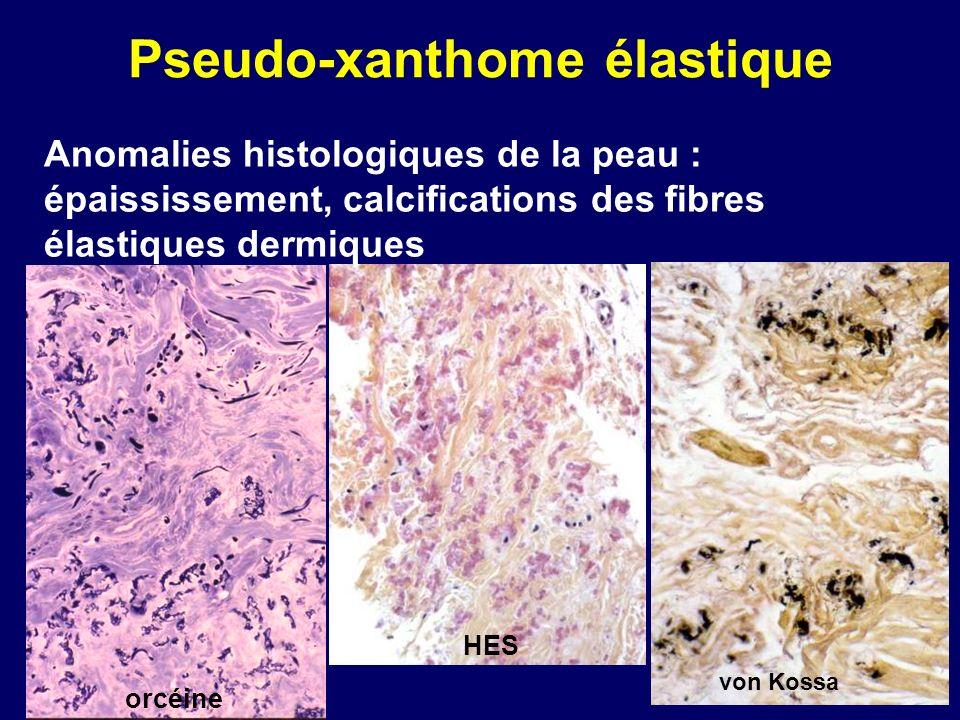 Pseudo-xanthome élastique Anomalies histologiques de la peau : épaississement, calcifications des fibres élastiques dermiques orcéine von Kossa HES