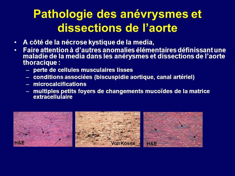 Pathologie des anévrysmes et dissections de laorte A côté de la nécrose kystique de la media, Faire attention à dautres anomalies élémentaires définis
