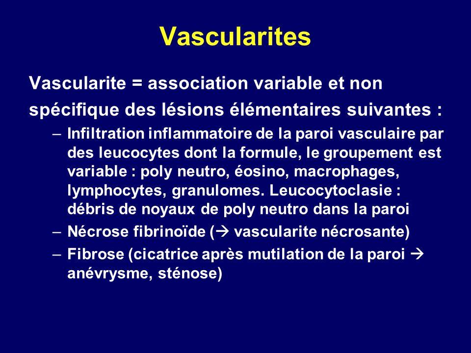 Vascularites Vascularite = association variable et non spécifique des lésions élémentaires suivantes : –Infiltration inflammatoire de la paroi vascula