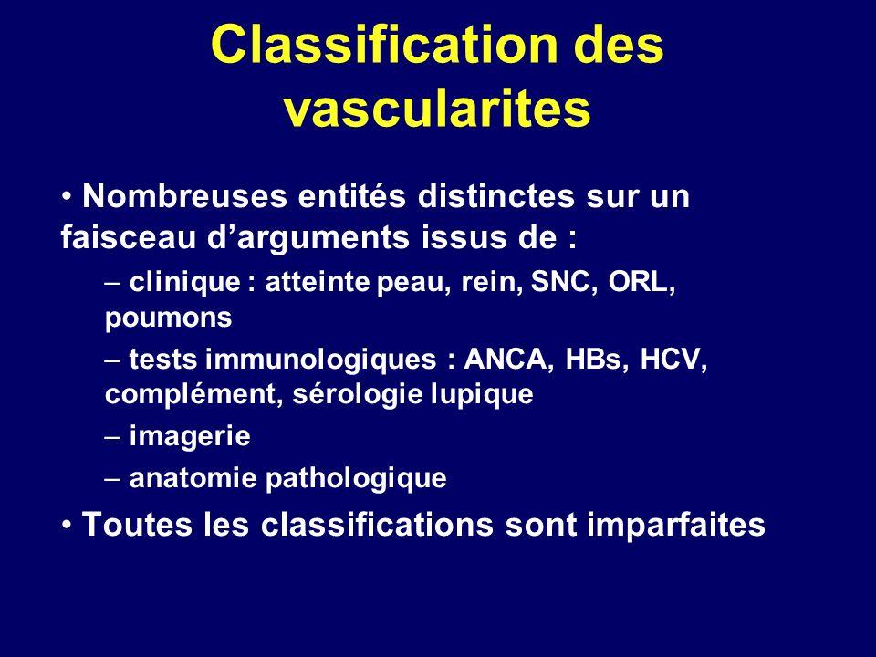 Classification des vascularites Nombreuses entités distinctes sur un faisceau darguments issus de : – clinique : atteinte peau, rein, SNC, ORL, poumon