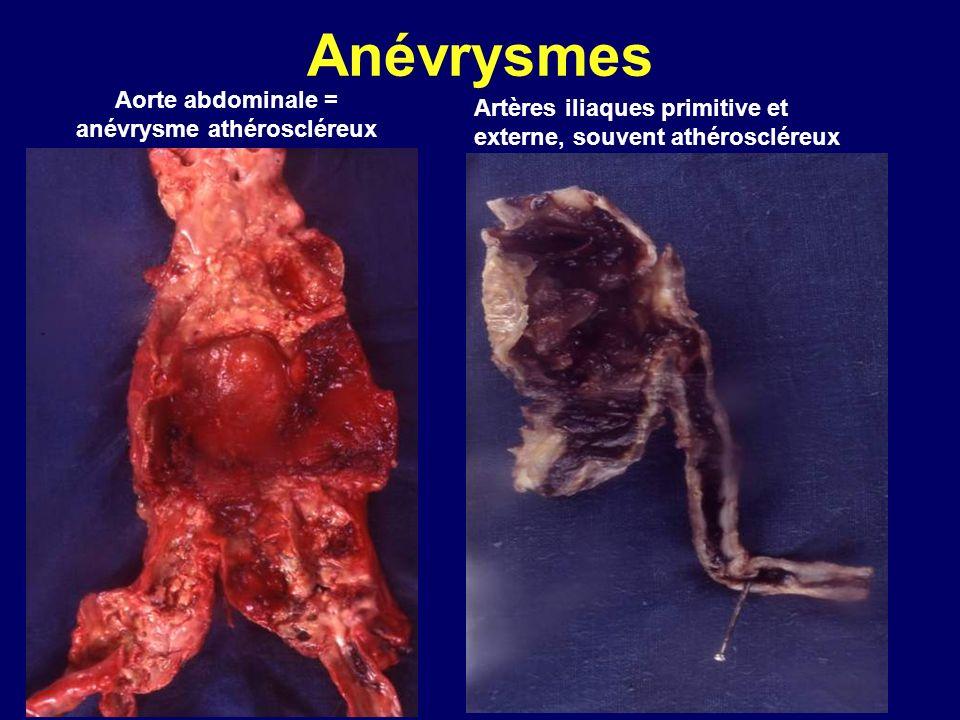 Anévrysmes Aorte abdominale = anévrysme athéroscléreux Artères iliaques primitive et externe, souvent athéroscléreux