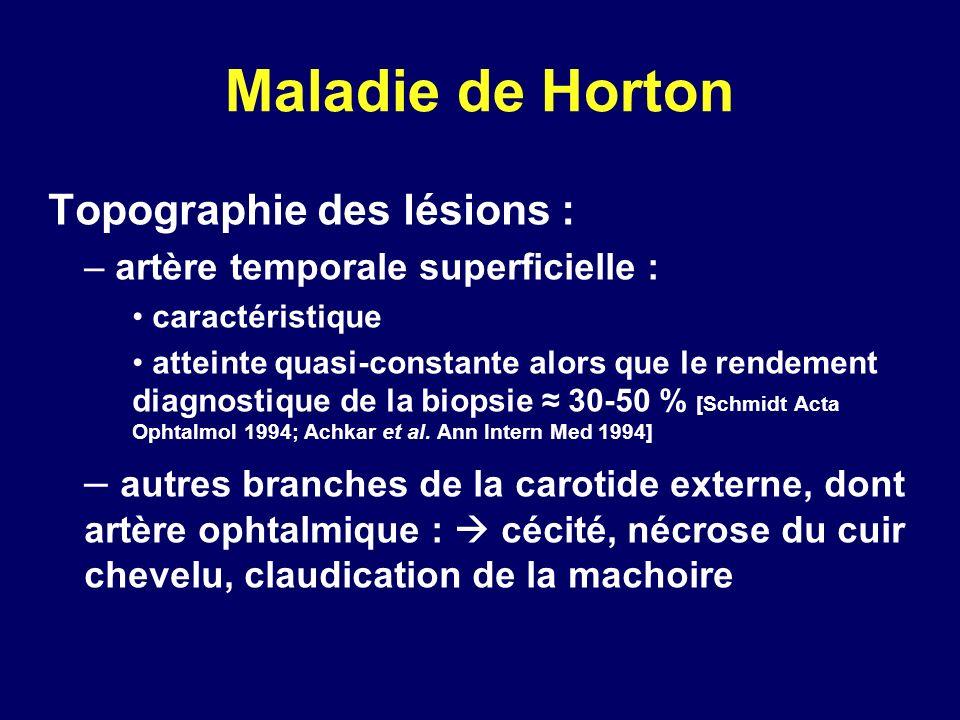 Maladie de Horton Topographie des lésions : – artère temporale superficielle : caractéristique atteinte quasi-constante alors que le rendement diagnos
