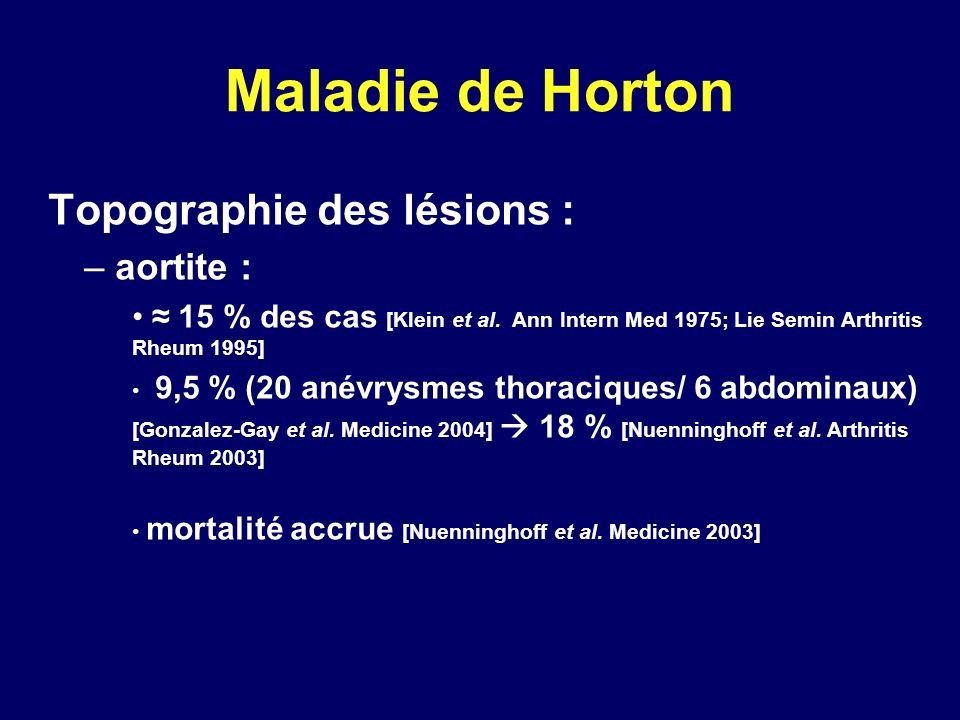 Maladie de Horton Topographie des lésions : – aortite : 15 % des cas [Klein et al. Ann Intern Med 1975; Lie Semin Arthritis Rheum 1995] 9,5 % (20 anév