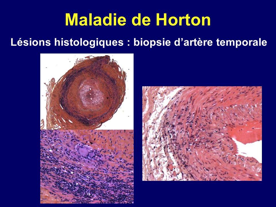 Maladie de Horton Lésions histologiques : biopsie dartère temporale