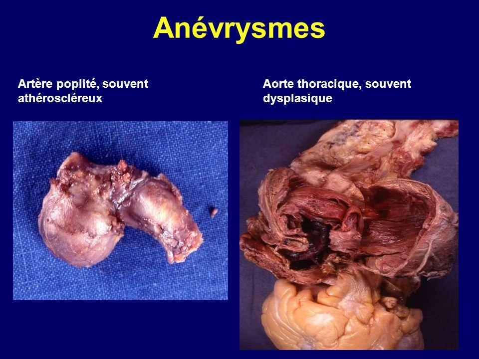 Anévrysmes Aorte thoracique, souvent dysplasique Artère poplité, souvent athéroscléreux