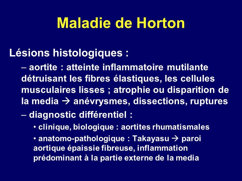 Maladie de Horton Lésions histologiques : – aortite : atteinte inflammatoire mutilante détruisant les fibres élastiques, les cellules musculaires liss