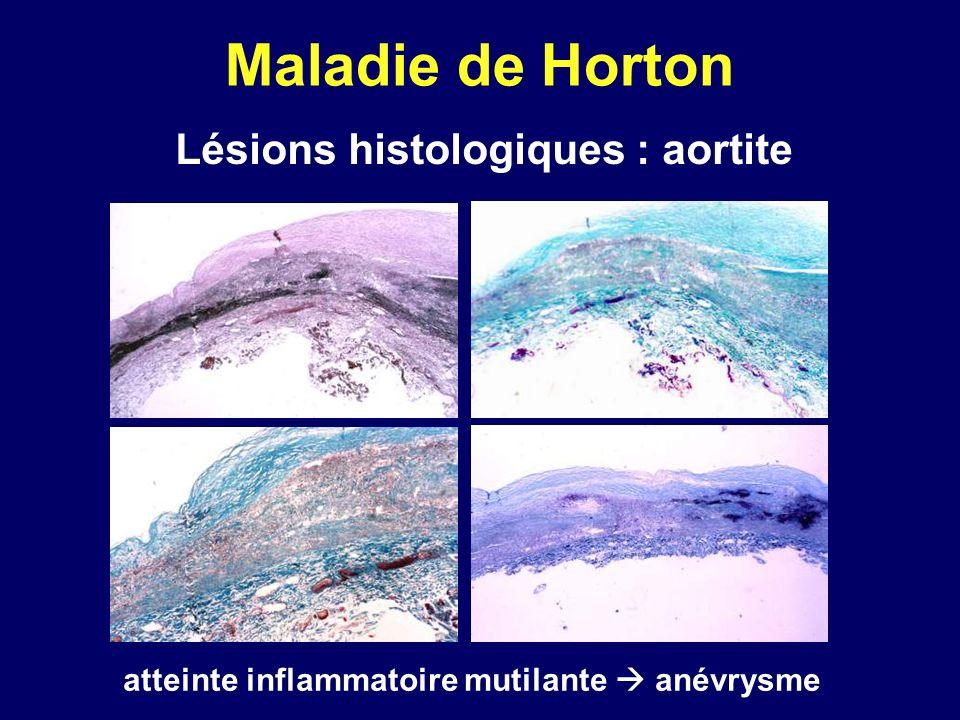Maladie de Horton Lésions histologiques : aortite atteinte inflammatoire mutilante anévrysme