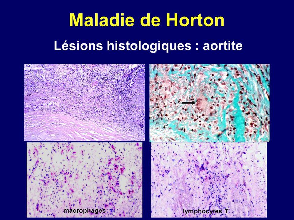 Maladie de Horton Lésions histologiques : aortite macrophages lymphocytes T