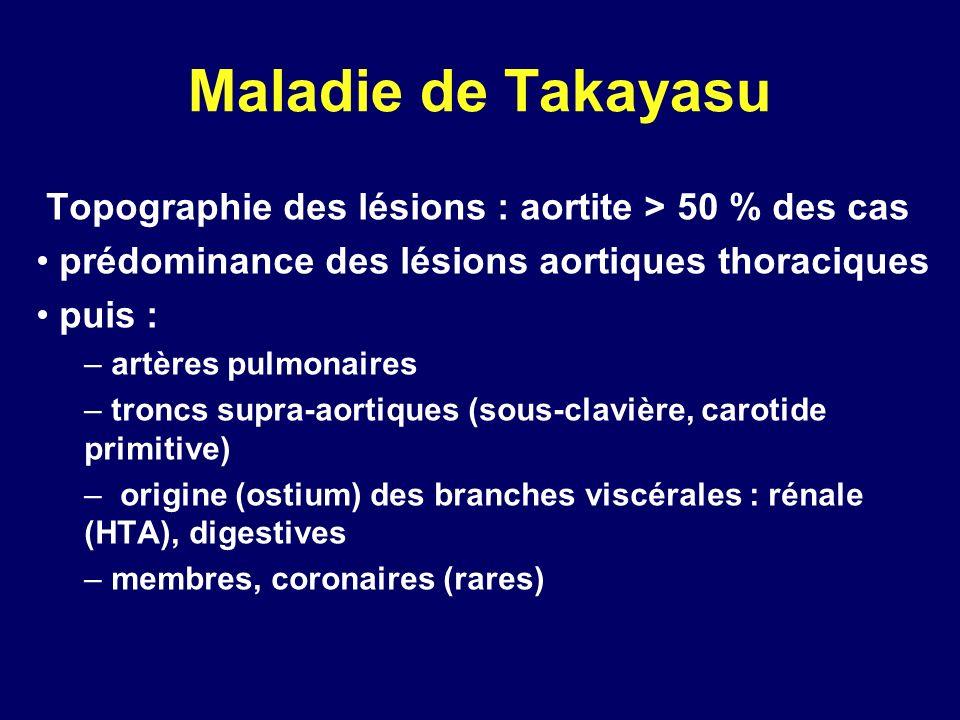 Maladie de Takayasu Topographie des lésions : aortite > 50 % des cas prédominance des lésions aortiques thoraciques puis : – artères pulmonaires – tro