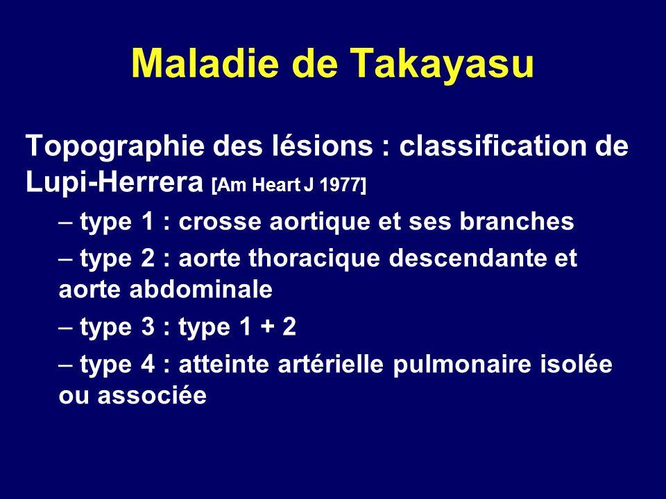 Maladie de Takayasu Topographie des lésions : classification de Lupi-Herrera [Am Heart J 1977] – type 1 : crosse aortique et ses branches – type 2 : a