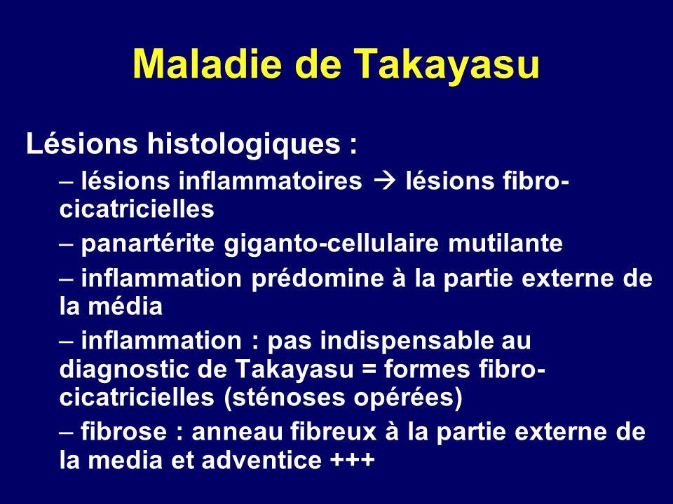 Maladie de Takayasu Lésions histologiques : – lésions inflammatoires lésions fibro- cicatricielles – panartérite giganto-cellulaire mutilante – inflam