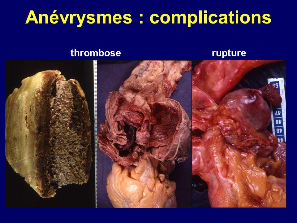 Anévrysmes : complications rupturethrombose