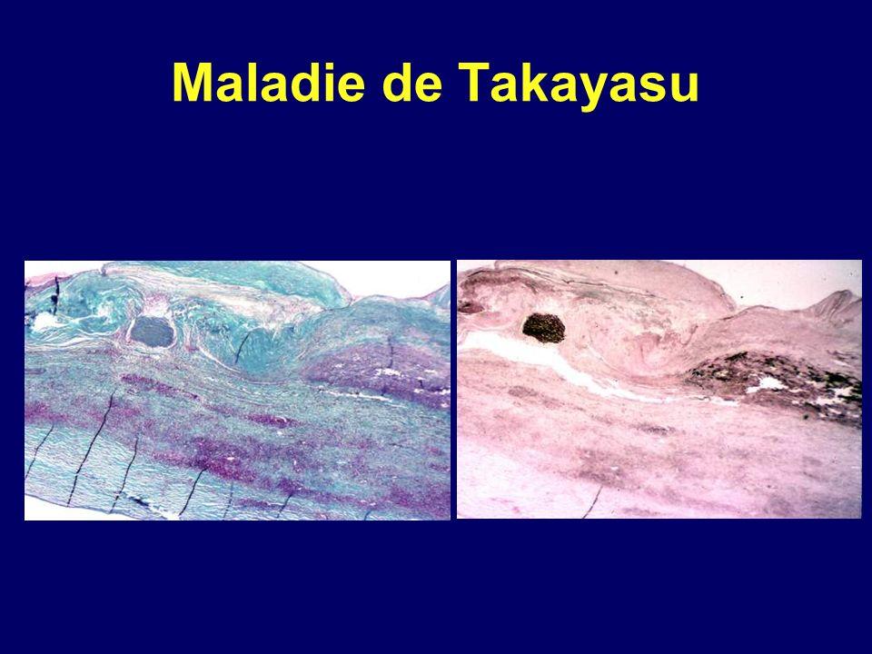 Maladie de Takayasu