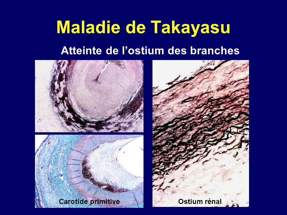 Atteinte de lostium des branches Carotide primitiveOstium rénal