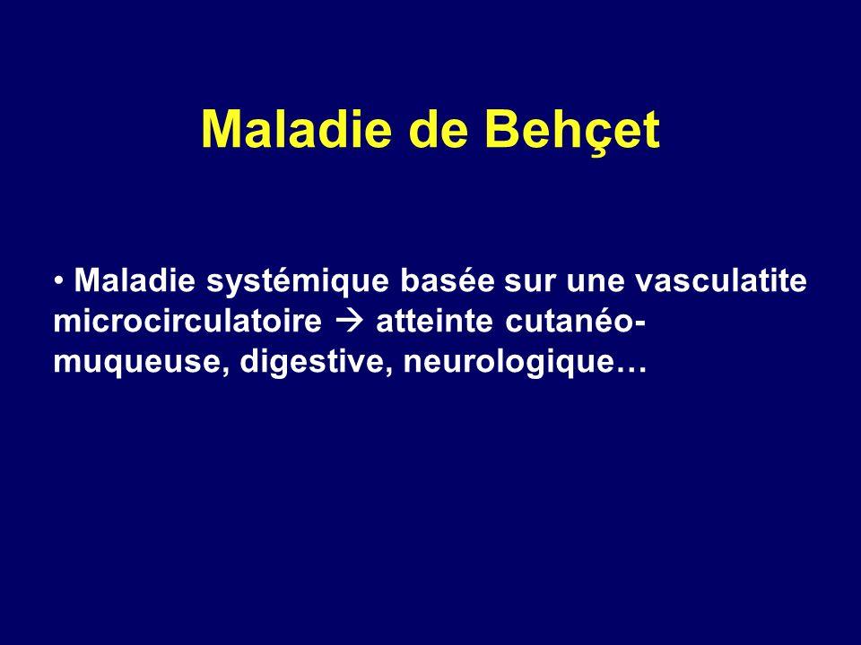 Maladie de Behçet Maladie systémique basée sur une vasculatite microcirculatoire atteinte cutanéo- muqueuse, digestive, neurologique…