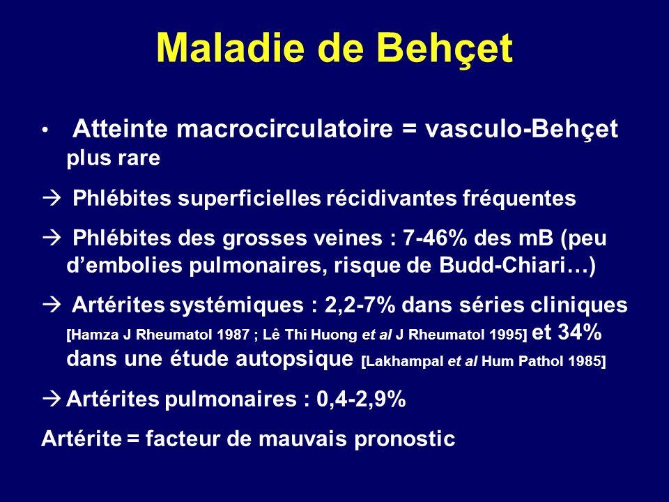 Maladie de Behçet Atteinte macrocirculatoire = vasculo-Behçet plus rare Phlébites superficielles récidivantes fréquentes Phlébites des grosses veines