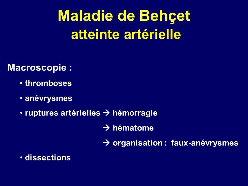 Maladie de Behçet atteinte artérielle Macroscopie : thromboses anévrysmes ruptures artérielles hémorragie hématome organisation : faux-anévrysmes diss
