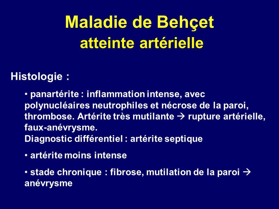 Maladie de Behçet atteinte artérielle Histologie : panartérite : inflammation intense, avec polynucléaires neutrophiles et nécrose de la paroi, thromb