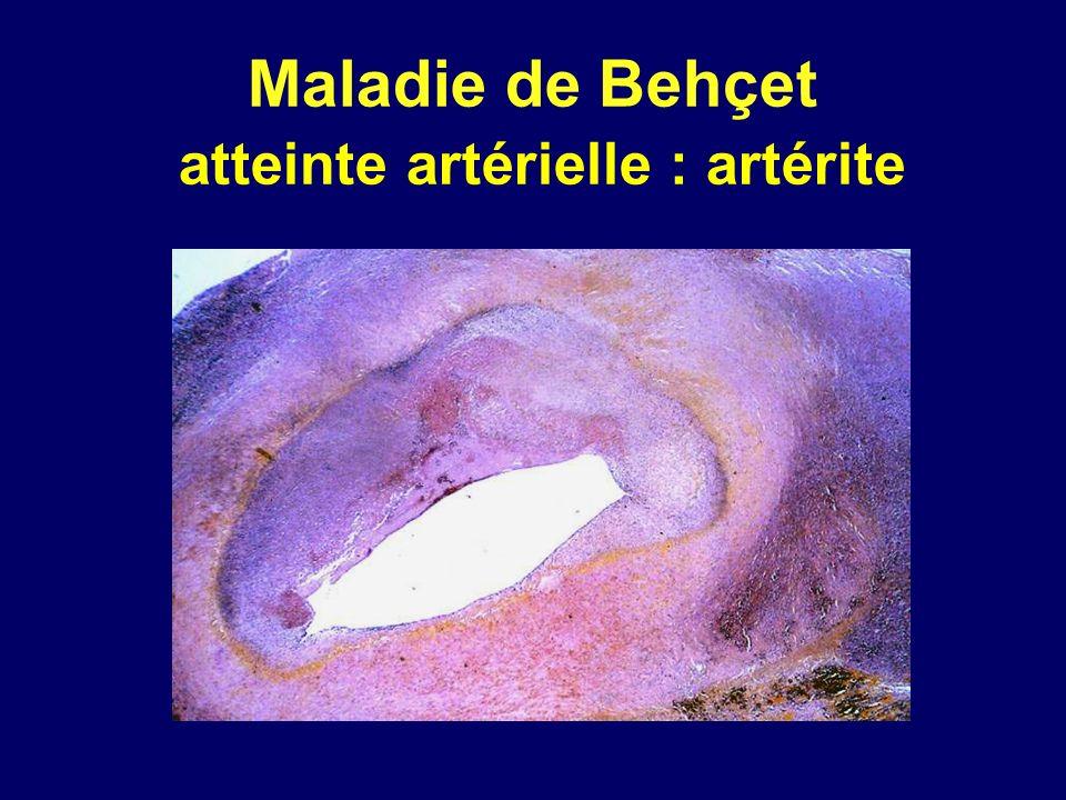 Maladie de Behçet atteinte artérielle : artérite