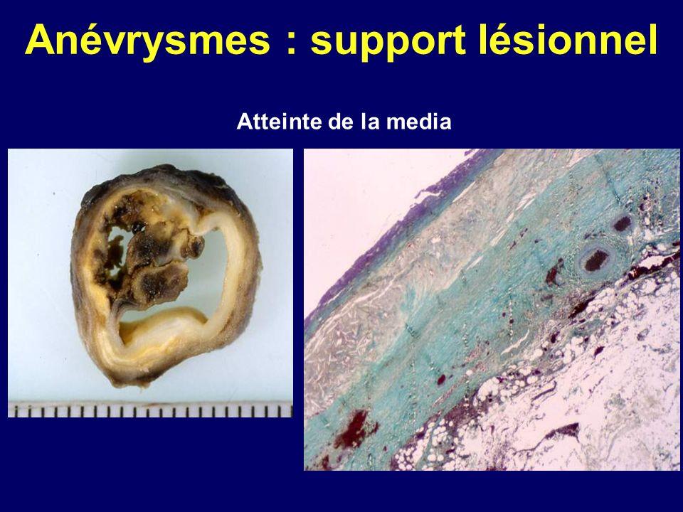 Maladie de Horton Lésions histologiques : – aortite : atteinte inflammatoire mutilante détruisant les fibres élastiques, les cellules musculaires lisses ; atrophie ou disparition de la media anévrysmes, dissections, ruptures – diagnostic différentiel : clinique, biologique : aortites rhumatismales anatomo-pathologique : Takayasu paroi aortique épaissie fibreuse, inflammation prédominant à la partie externe de la media