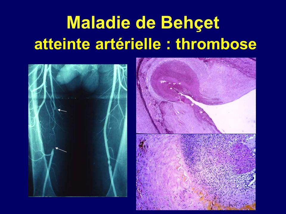 Maladie de Behçet atteinte artérielle : thrombose