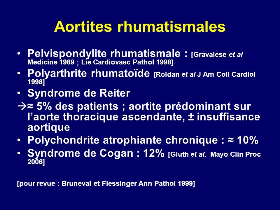 Aortites rhumatismales Pelvispondylite rhumatismale : [Gravalese et al Medicine 1989 ; Lie Cardiovasc Pathol 1998] Polyarthrite rhumatoïde [Roldan et