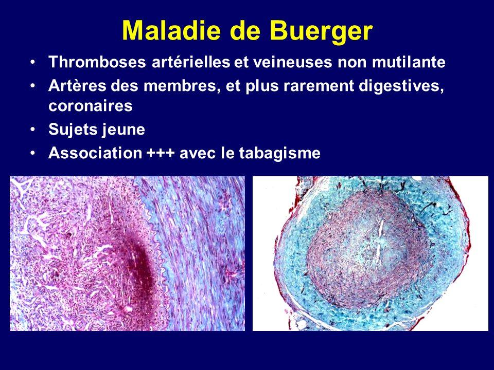 Maladie de Buerger Thromboses artérielles et veineuses non mutilante Artères des membres, et plus rarement digestives, coronaires Sujets jeune Associa